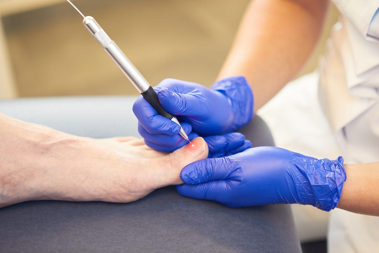 Laserbehandeling op de behandelbank