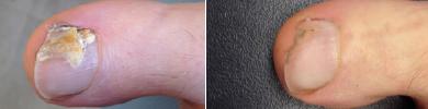 Voor en na foto laseren schimmelnagel