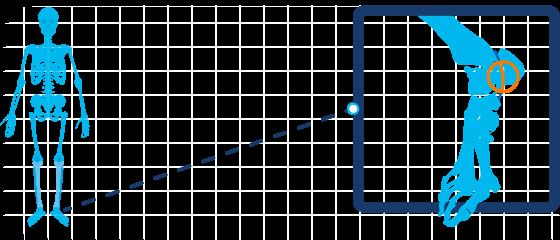 Tarsaal tunnelsyndroom