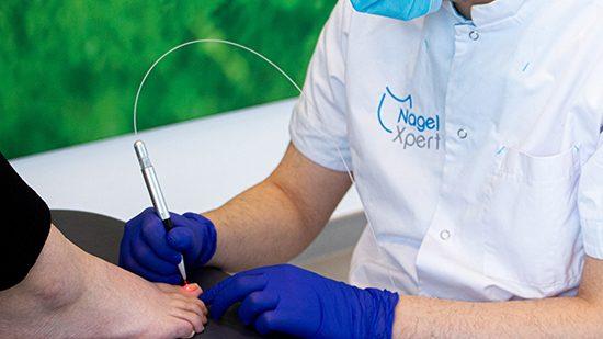 Laserbehandeling Kalknagels