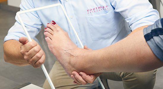 3D scan voet